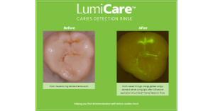 , GreenMark Secures FDA Clearance for LumiCare™ Caries Detection Rinse